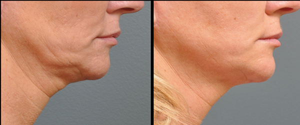 ultherapy_treatment_to_tight_and_lift_skin_calgary