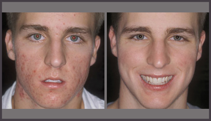 acne-treatment-for-men-in-calgary