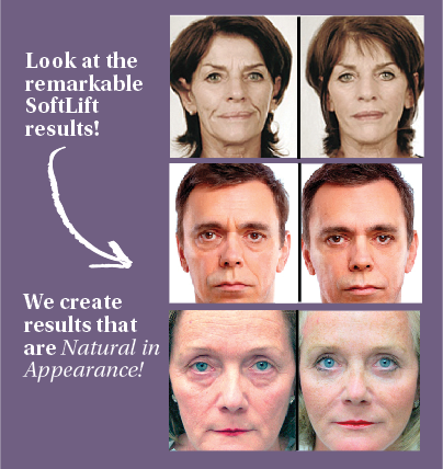 softlift-incalgary